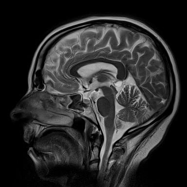Imagem rm cranio sagital