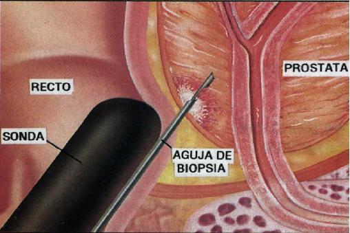 andrea.militello_biopsia-transrectal-de-prostata_1